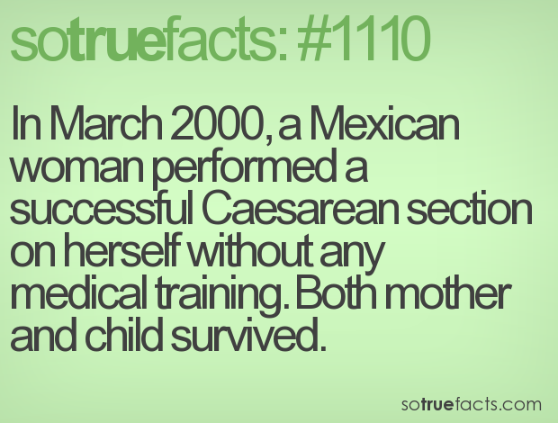 In March 2000, a Mexican woman performed a successful Caesarean section on herself without any medical training. Both mother and child survived.