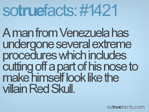 A man from Venezuela has undergone several extreme procedures which includes cutting off a part of his nose to make himself look like the villain Red Skull.